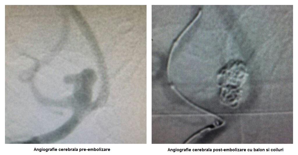 Angiografie cerebrala pre- si post-embolizare cu balon si coiluri
