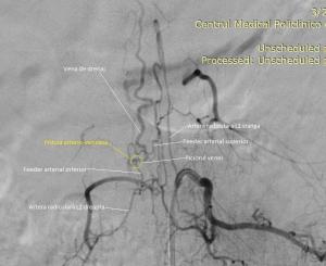 Angiografie fistula arteriovenoasa