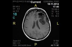 Astrocitom anaplazic - RMN postoperator