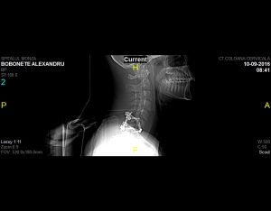 Radiografie postoperatorie profil